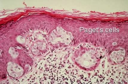 Paget's disease of the Breast - Moose and Doc