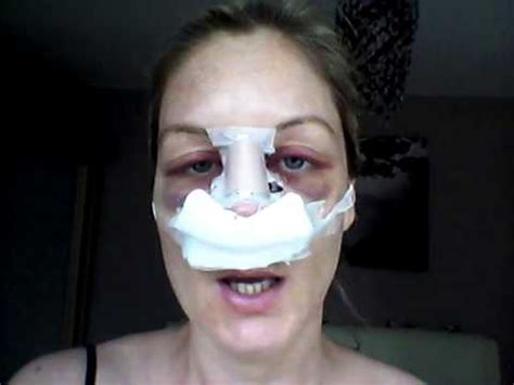 Septoplasty Recovery - Day 2 (revision surgery) - YouTube