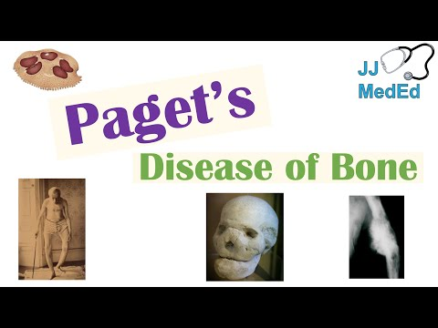 Pathology Outlines - Paget disease
