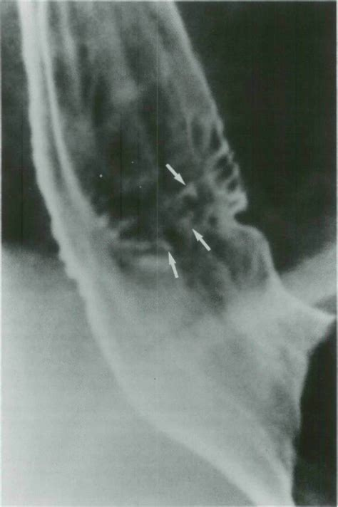 What are the radiologic signs of reflux esophagitis?