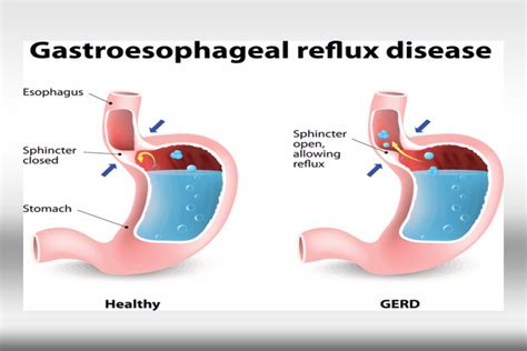 Gastroesophageal Reflux: How To Calm Your Symptoms With